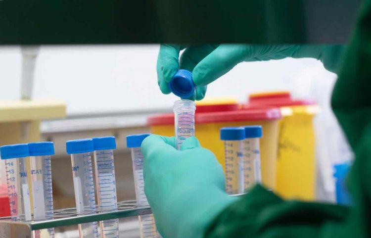 Coronavirus Italia comune influenza stagionale confronto numeri dati Gismondo