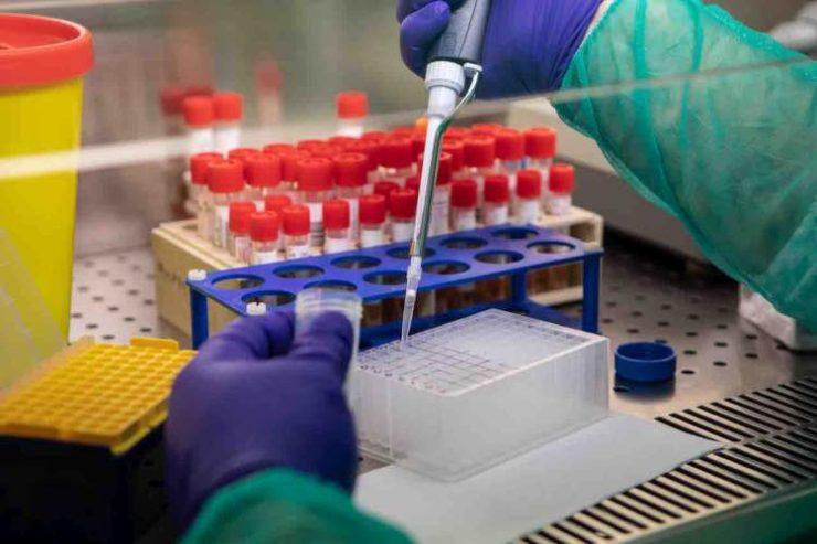test degli anticorpi
