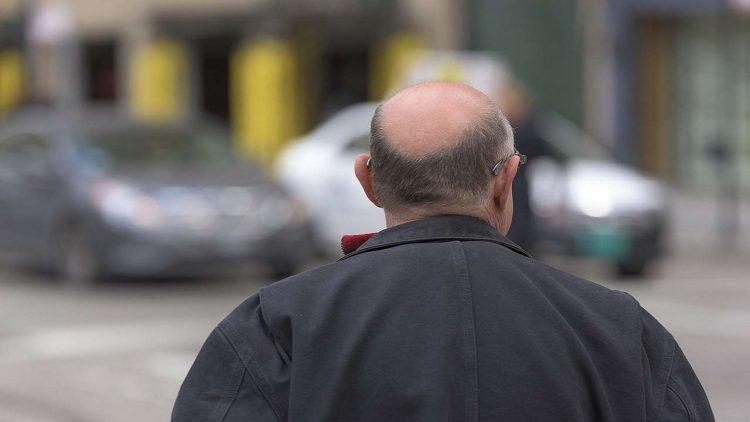 Uomo capelli