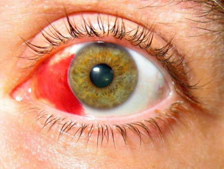 sangue negli occhi