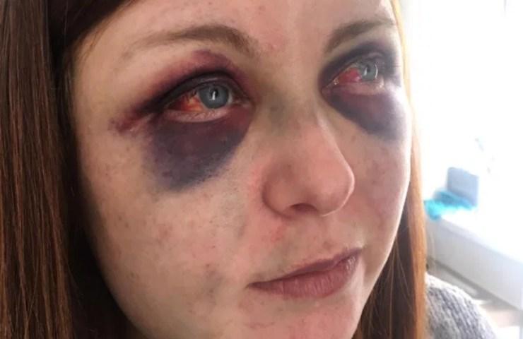 Violenza sulle donne Jenna Hurley strappare occhi