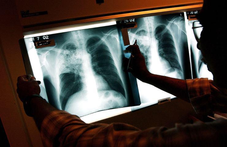 Rx Torace tosse febbre preservativo polmone